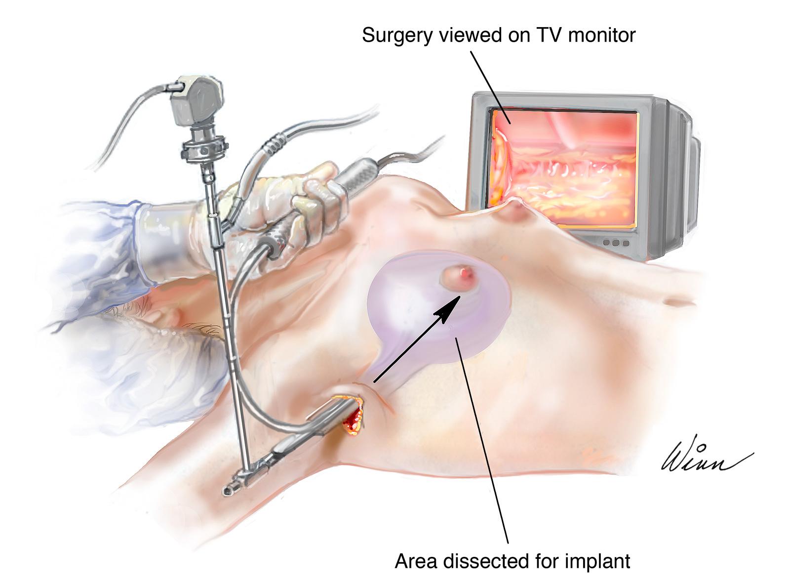 Axillary Breast Augmentation Portland | Esprit Cosmetic Surgeons