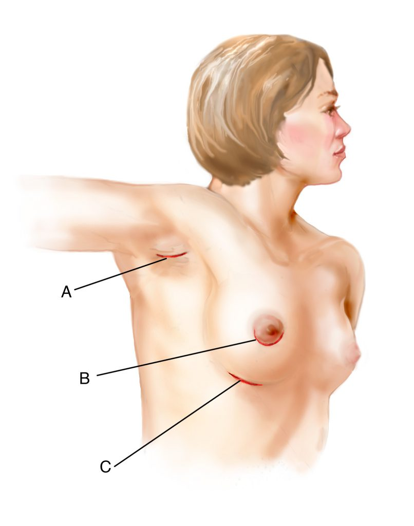 Breast Augmentation Incisions Shown on Female Upper Torso Drawing