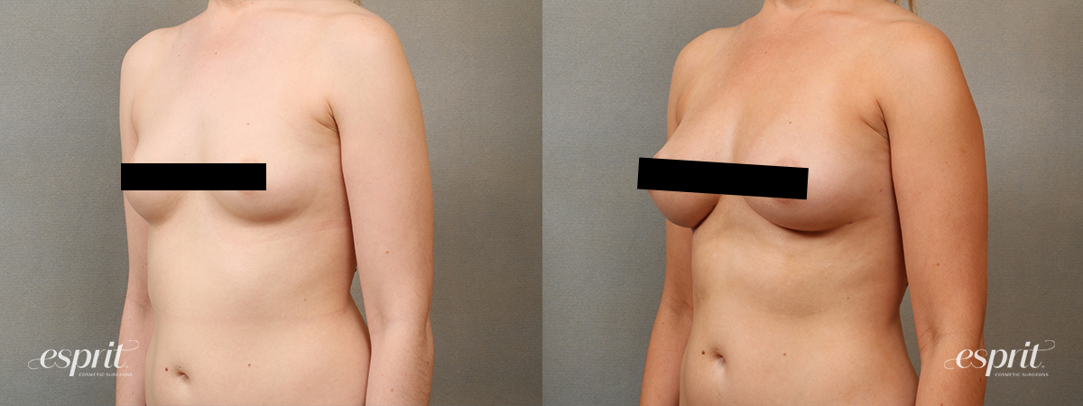 Esprit_Fat-Grafting_Case2203_Oblique_Censored2