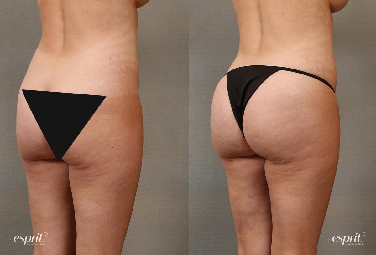 Esprit_Tualatin_Brazillian_Buttock_Lift_Case2108_Oblique_CENSORED