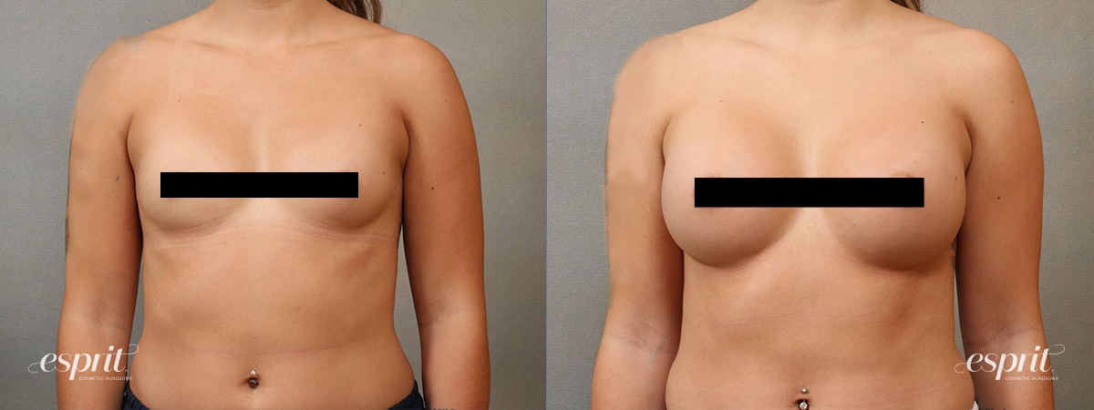 Esprit_Tualatin_Breast_Augmentation_Case4111_Front_Censored
