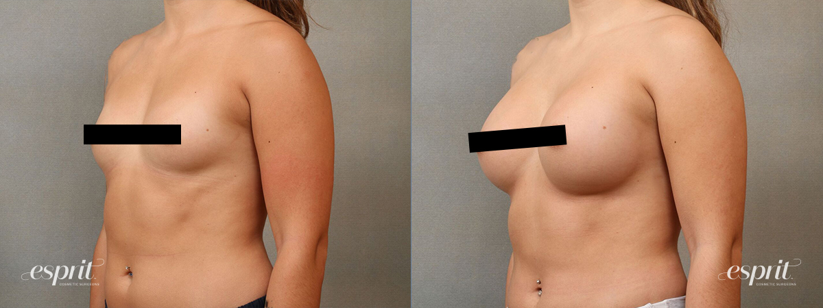 Esprit_Tualatin_Breast_Augmentation_Case4111_Oblique_Censored2
