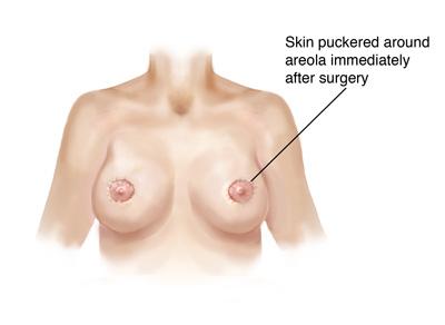 circumareolar soon after