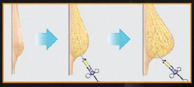 Fat Transfer Illustration