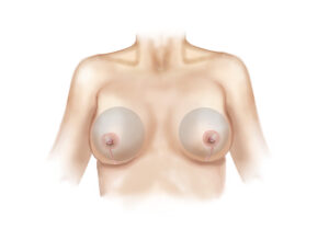vertical breast lift and augmentation