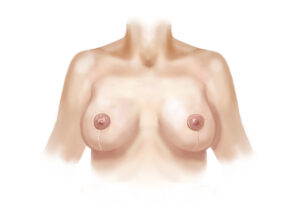 inverted-T breast lift