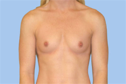 Before breast augmentation Copy