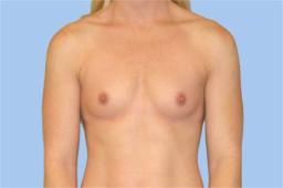 Before breast augmentation Copy
