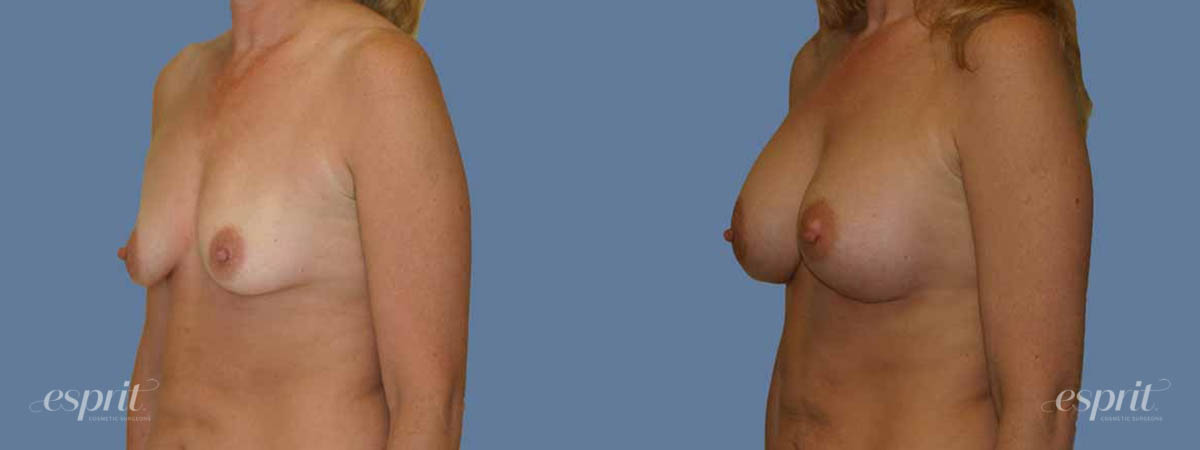 Case 1249 Before and After Left Oblique View