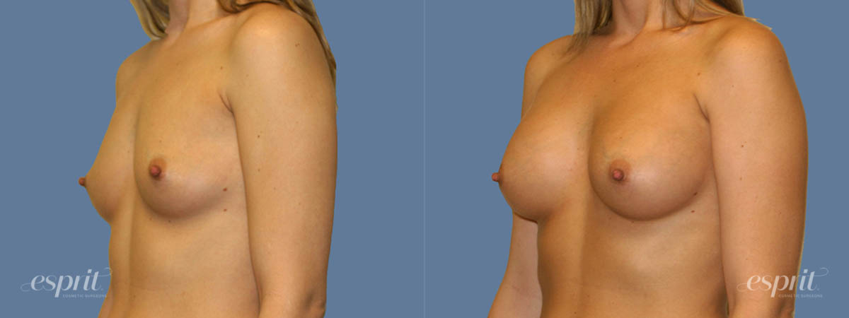 Case 1256 Before and After Left Oblique View
