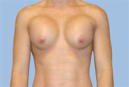 one week After breast augmentation