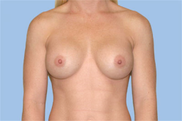 6 Months After breast augmentation