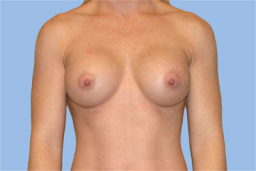 3 months After breast augmentation