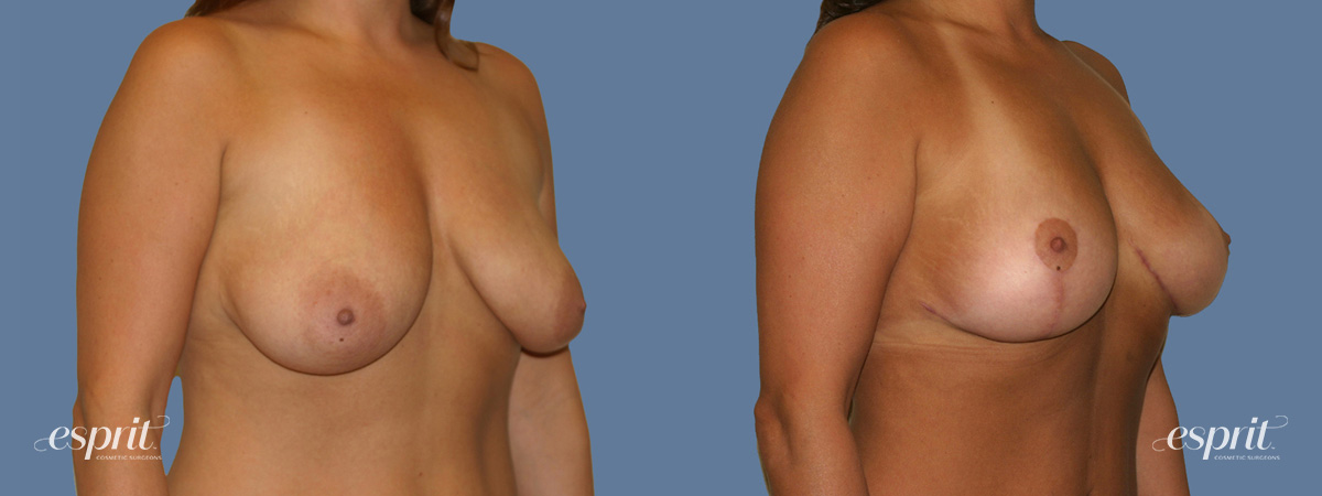 Case 1246 Before and After Right Oblique View