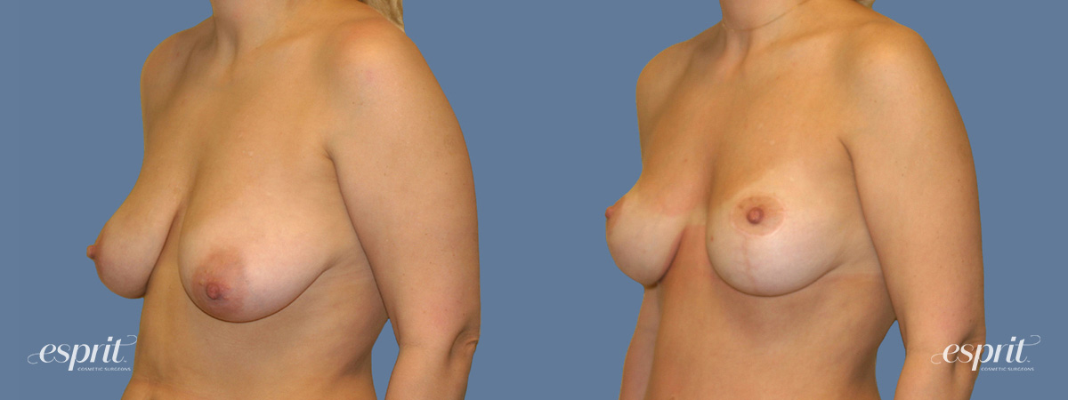 Case 1306 Before and After Left Oblique View