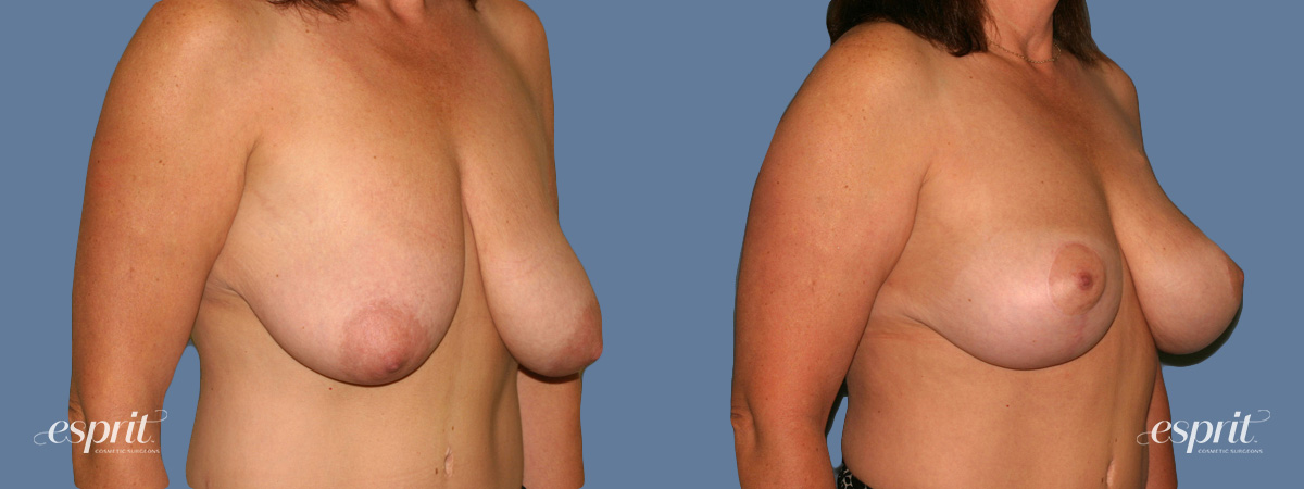 Case 1312 Before and After Right Oblique View