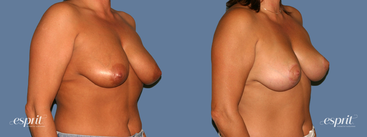 Case 1313 Before and After Right Oblique View