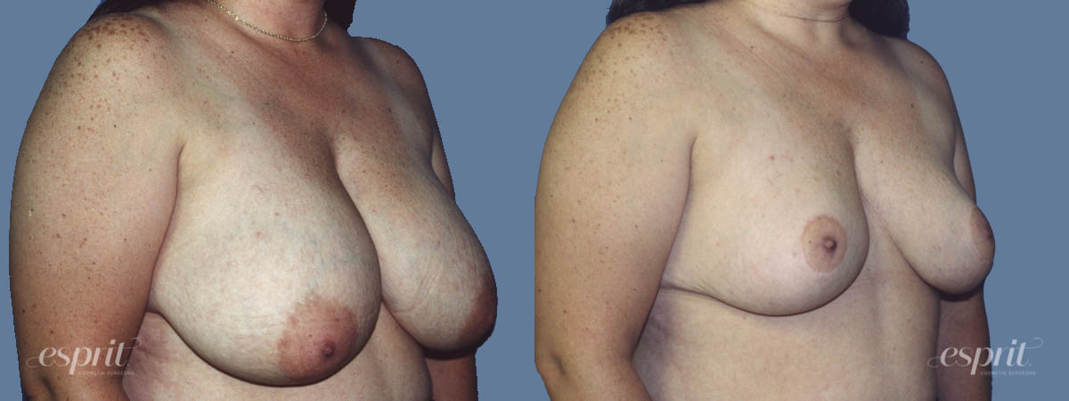 Case 1314 Before and After Right Oblique View