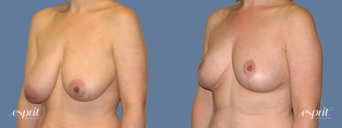 Case 1315 Before and After Left Oblique View