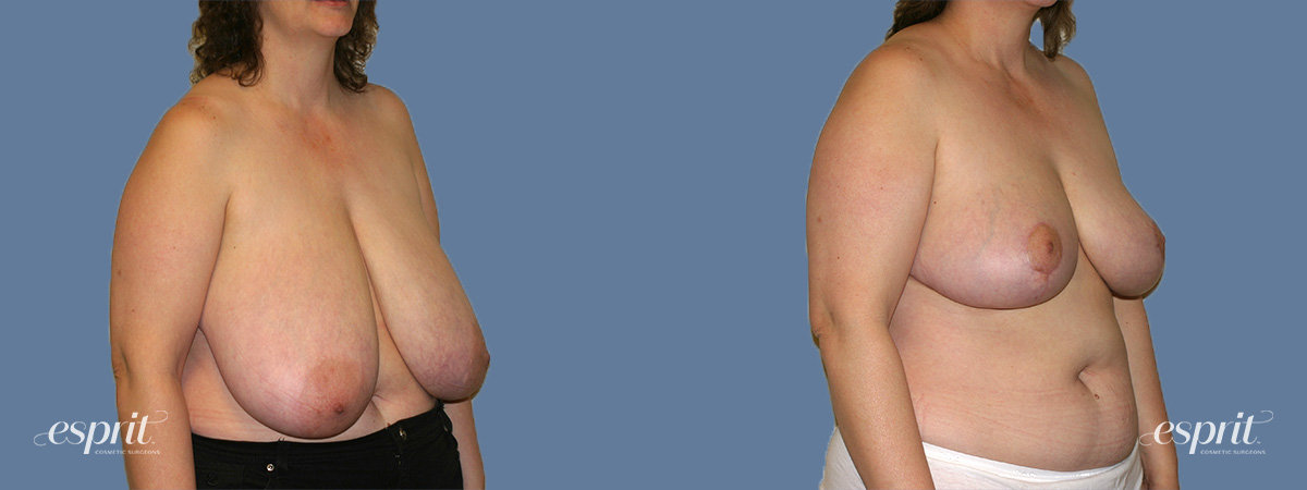 Case 1317 Before and After Right Oblique View