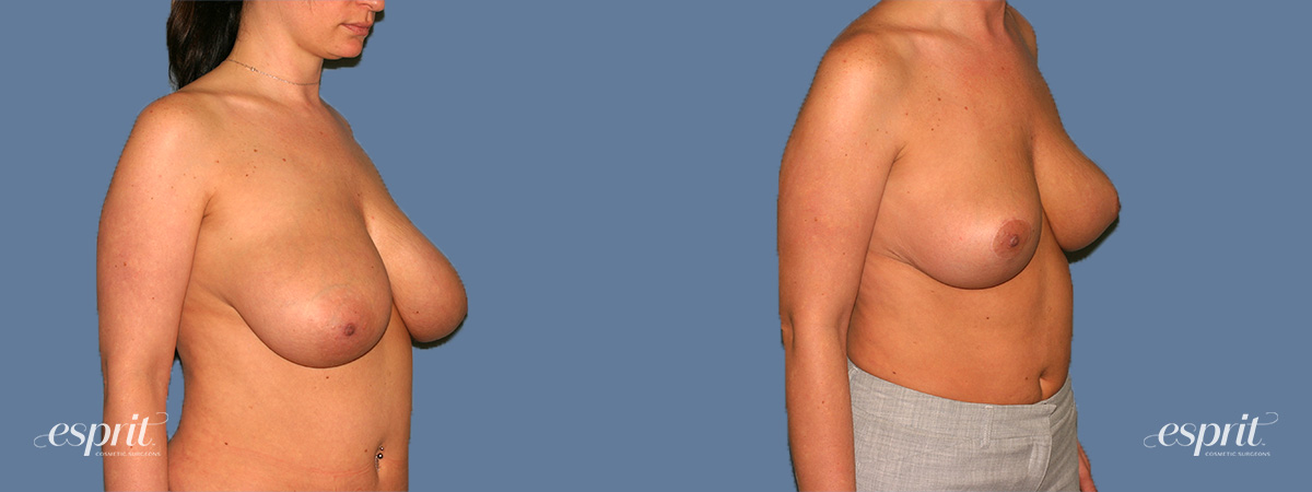 Case 1320 Before and After Right Oblique View