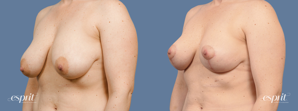 Case 1445 Before and After Left Oblique View
