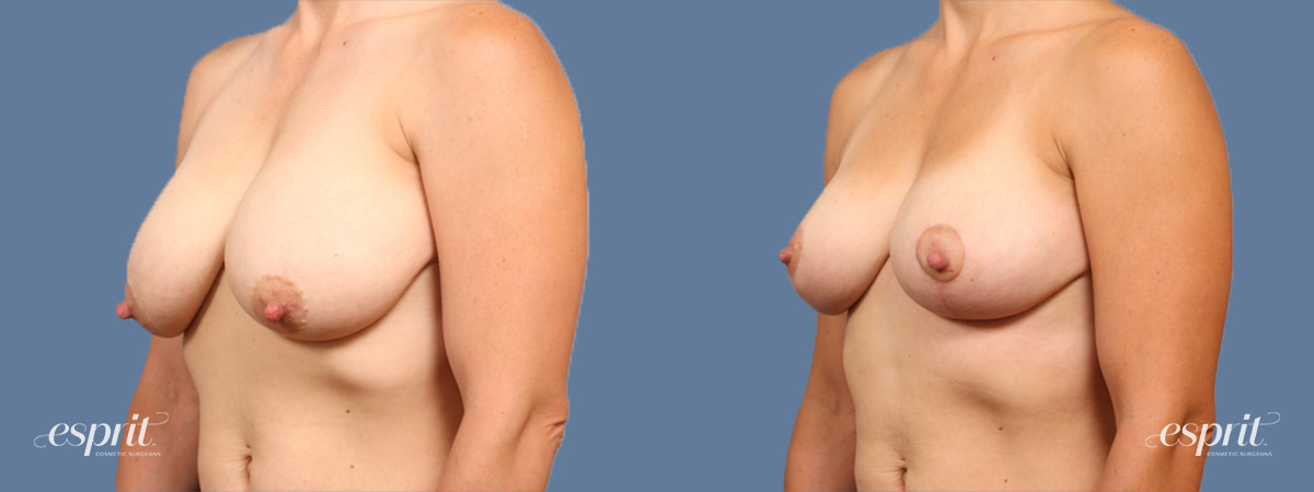 Case 1520 Before and After Left Oblique View