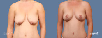 Case 1614 Breast Lift with Fat Grafting Before and After Front View