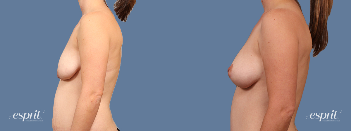Case 1614 Breast Lift with Fat Grafting Before and After Left Side View