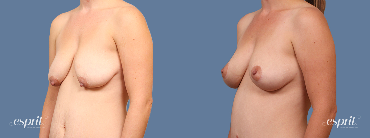 Case 1614 Breast Lift with Fat Grafting Before and After Left Oblique View