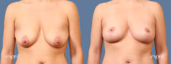 Case 1670 Breast Lift with Fat Grafting Before and After Front View