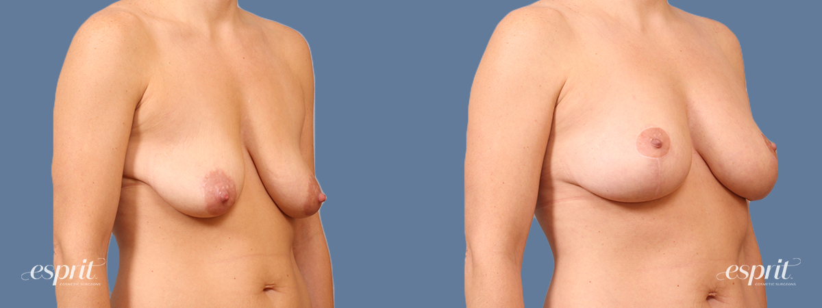 Case 1670 Breast Lift with Fat Grafting Before and After Right Oblique View