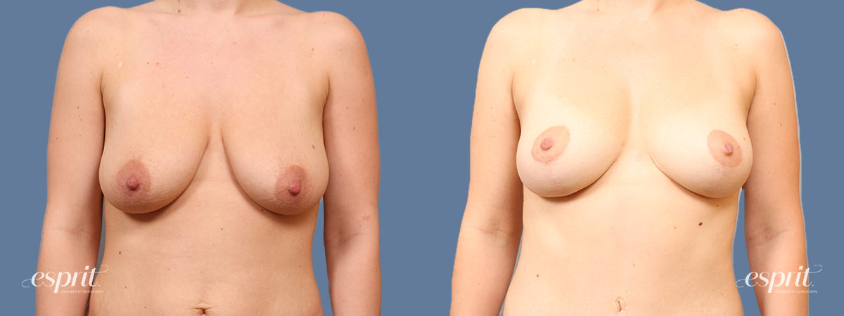 Case 1714 Breast Lift with Fat Grafting Before and After Front View