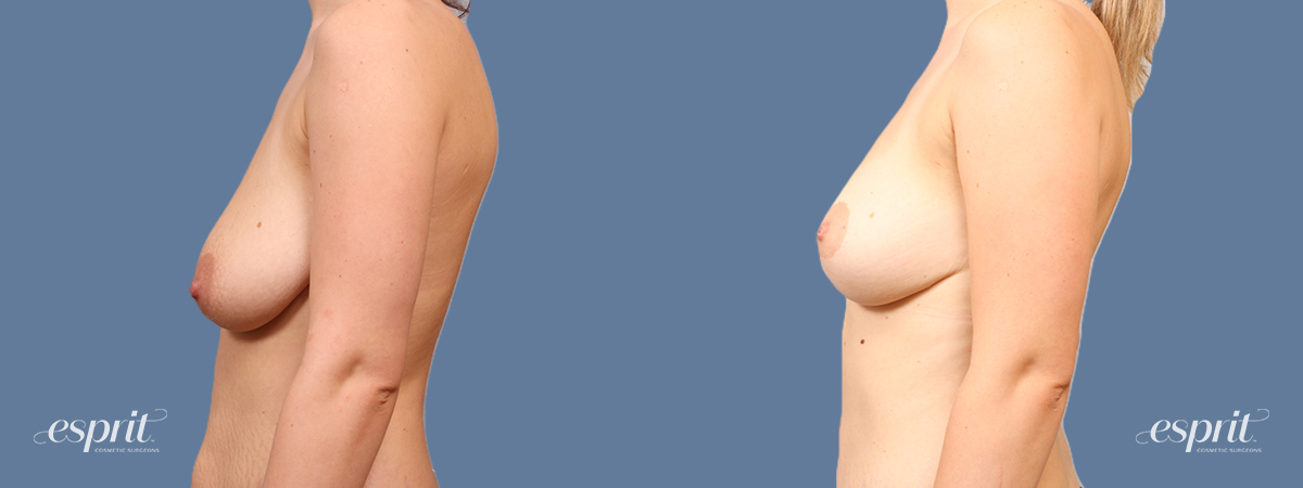 Case 1714 Breast Lift with Fat Grafting Before and After Left Side View