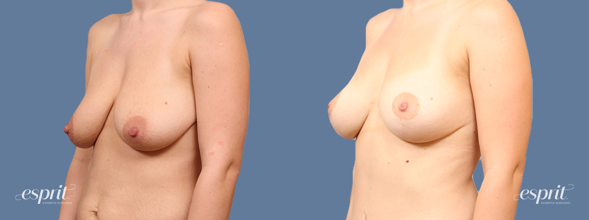 Case 1714 Breast Lift with Fat Grafting Before and After Left Oblique View