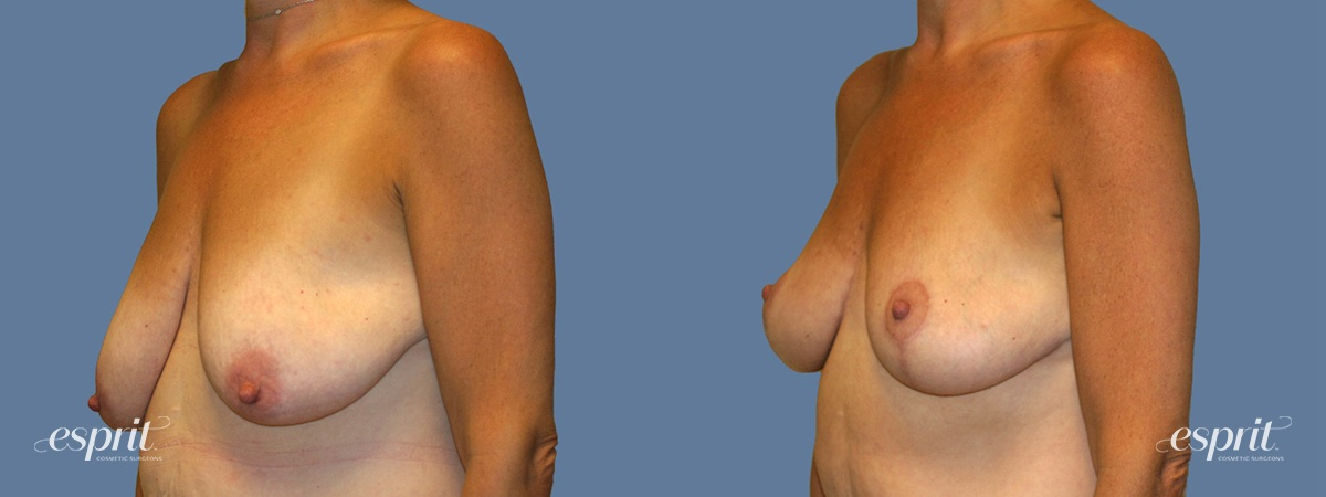Case 1307 Before and After Left Oblique View