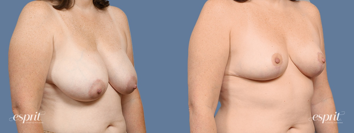 Case 1423 Before and After Right Oblique View