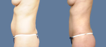 Case 1451 Tummy Tuck Before and After Left Side View