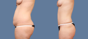 Case 1613 Tummy Tuck Before and After Left Side View