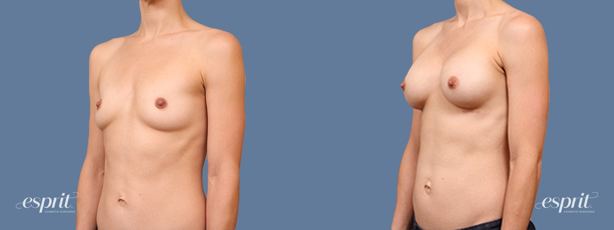 Case 1703 Before and After Left Oblique View