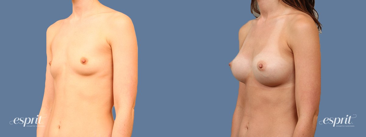 Case 2001 Before and After Left Oblique View