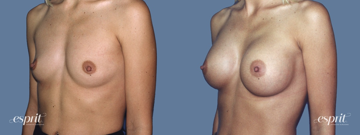 Case 1244 Before and After Left Oblique View