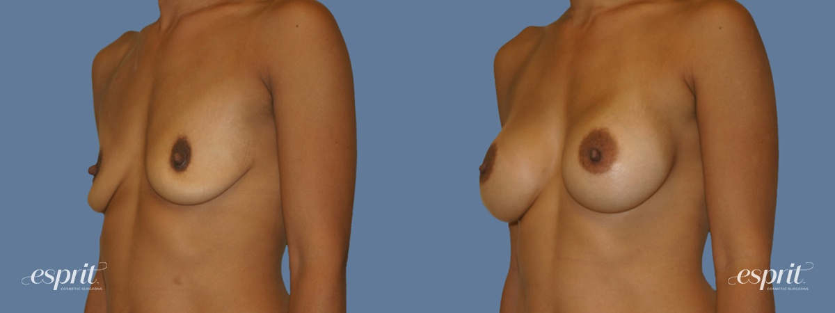 Case 1251 Before and After Left Oblique View