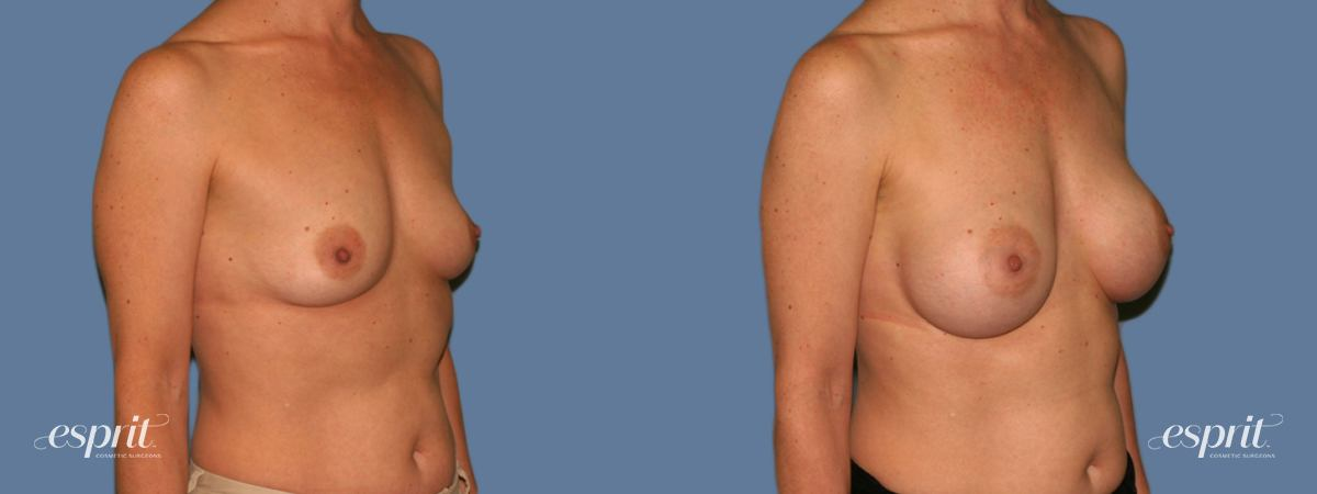 Case 1281 Before and After Right Oblique View