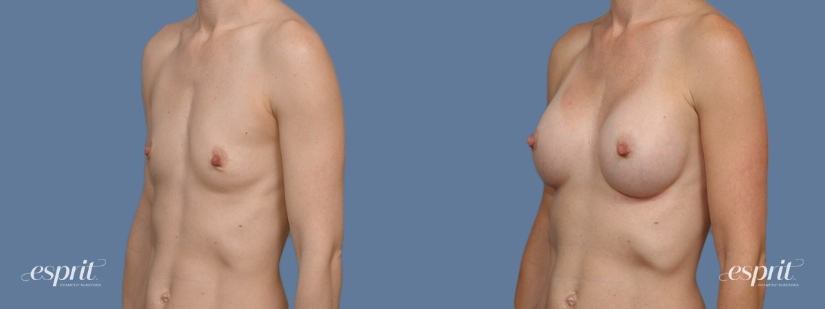Case 1384 Before and After Left Oblique View