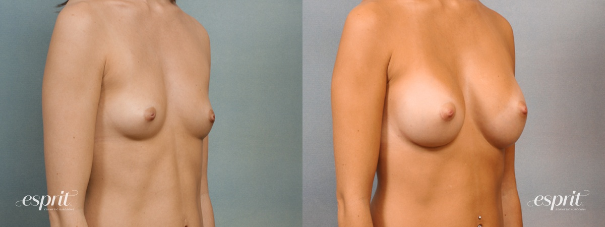 Case 1433 Before and After Right Oblique View