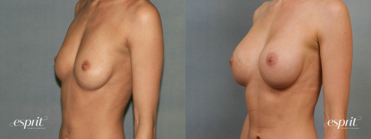 Case 1443 Before and After Left Oblique View
