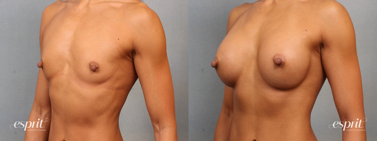 Case 1481 Before and After Left Oblique View