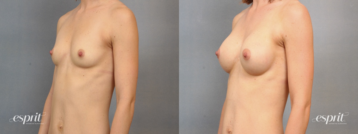 Case 1493 Before and After Left Oblique View