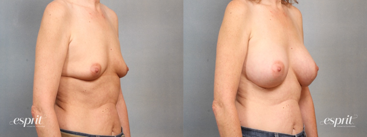 Case 1530 Before and After Right Oblique View